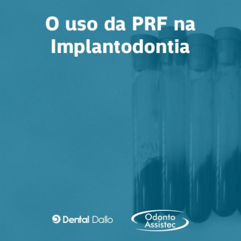PRF na Implantodontia